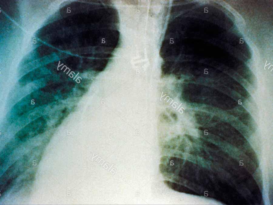 Síndrome-Pulmonar-por-Hantavirus-1