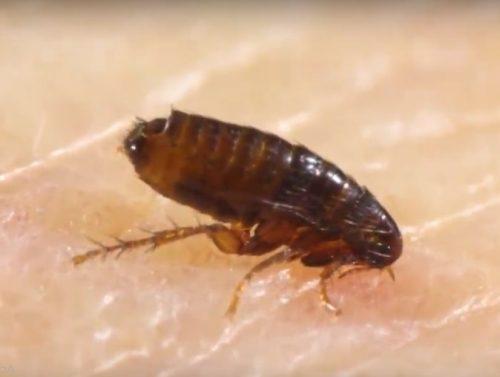 Cómo deshacerse de las pulgas en las personas